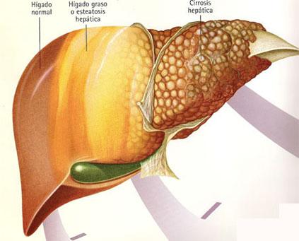 Alkogolno abstinentnyy el síndrome